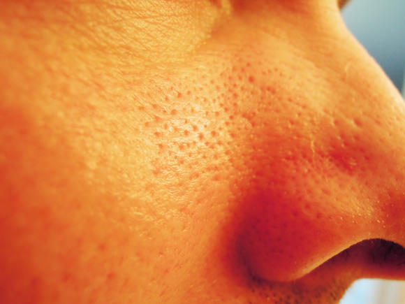Closeup image of clogged pores on a cheek