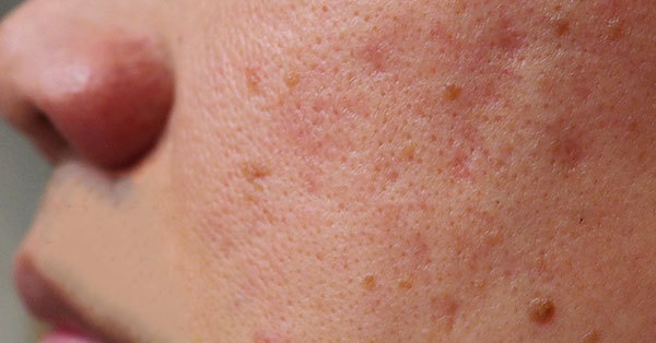 Image of rough and uneven skin texture and tone