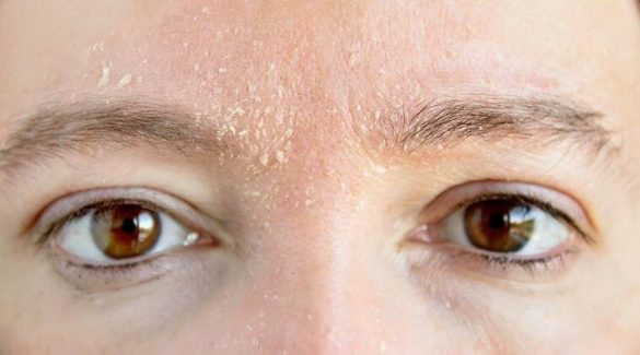 Getty Images picture of woman with dry skin